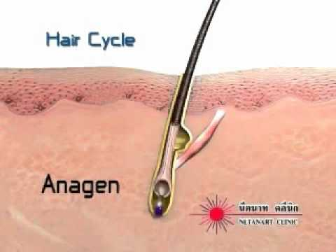 Electrolysis permanent hair removal facts and information